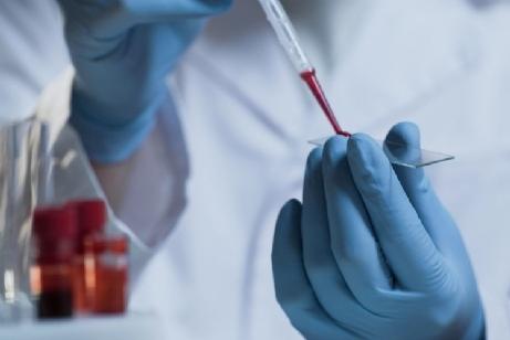5 coisas que você precisa saber sobre marcadores tumorais